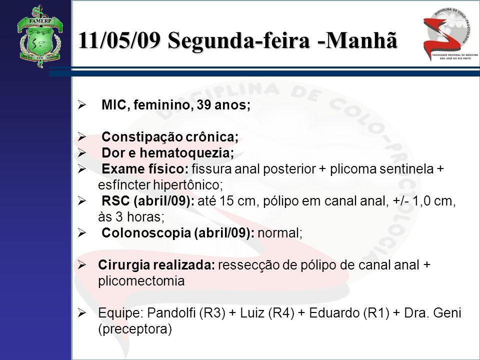 11/05/09 Segunda-feira -Manhã MIC, feminino, 39 anos; Constipação crônica; Dor e hematoquezia; Exame físico: fissura anal posterior + plicoma sentinel