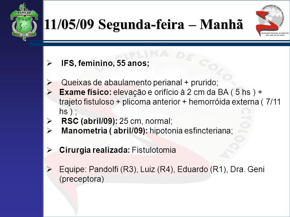 11/05/09 Segunda-feira – Manhã IFS, feminino, 55 anos; Queixas de abaulamento perianal + prurido; Exame físico: elevação e orifício à 2 cm da BA ( 5 h