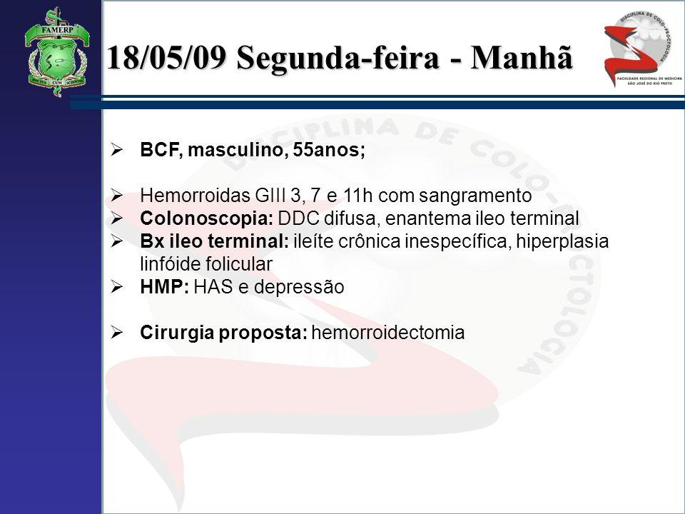 18/05/09 Segunda-feira - Manhã BCF, masculino, 55anos; Hemorroidas GIII 3, 7 e 11h com sangramento Colonoscopia: DDC difusa, enantema ileo terminal Bx