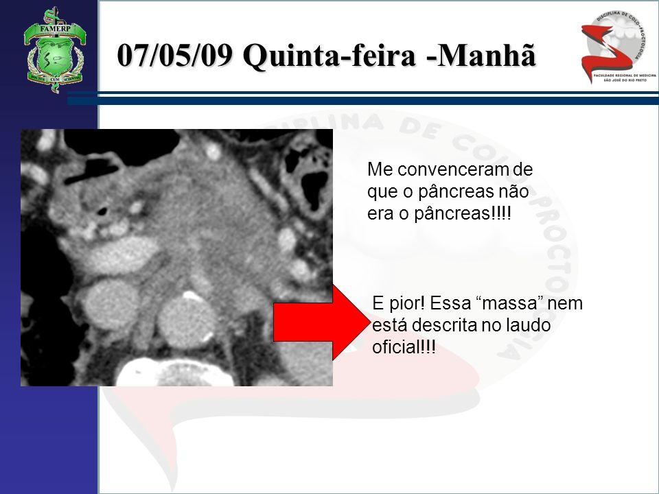 Me convenceram de que o pâncreas não era o pâncreas!!!! E pior! Essa massa nem está descrita no laudo oficial!!!