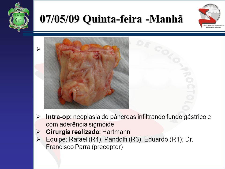 07/05/09 Quinta-feira -Manhã Intra-op: neoplasia de pâncreas infiltrando fundo gástrico e com aderência sigmóide Cirurgia realizada: Hartmann Equipe: