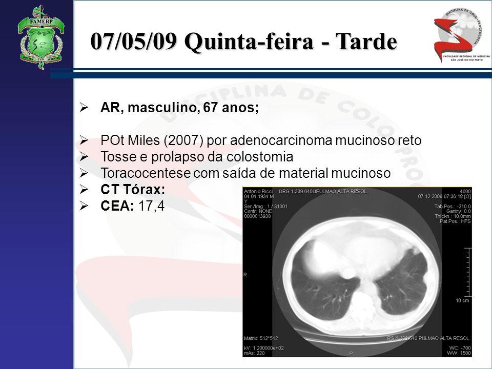 07/05/09 Quinta-feira - Tarde AR, masculino, 67 anos; POt Miles (2007) por adenocarcinoma mucinoso reto Tosse e prolapso da colostomia Toracocentese c