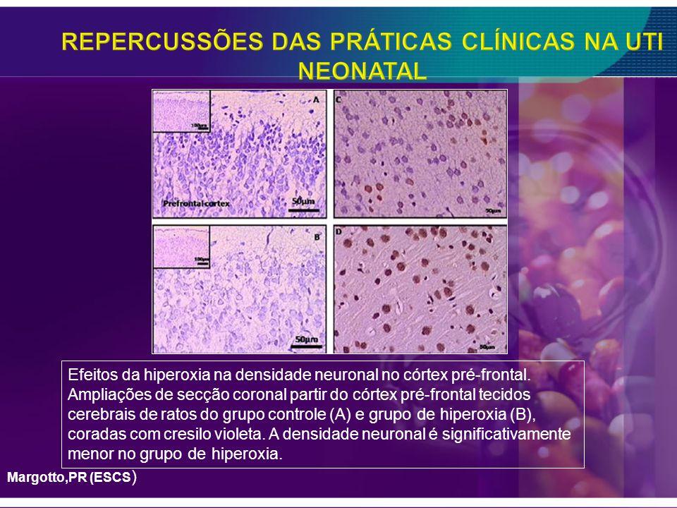 E feitos da hiperoxia na densidade neuronal no córtex pré-frontal. Ampliações de secção coronal partir do córtex pré-frontal tecidos cerebrais de rato