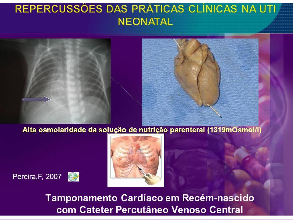 Tamponamento Cardíaco em Recém-nascido com Cateter Percutâneo Venoso Central Alta osmolaridade da solução de nutrição parenteral (1319mOsmol/l) Pereir
