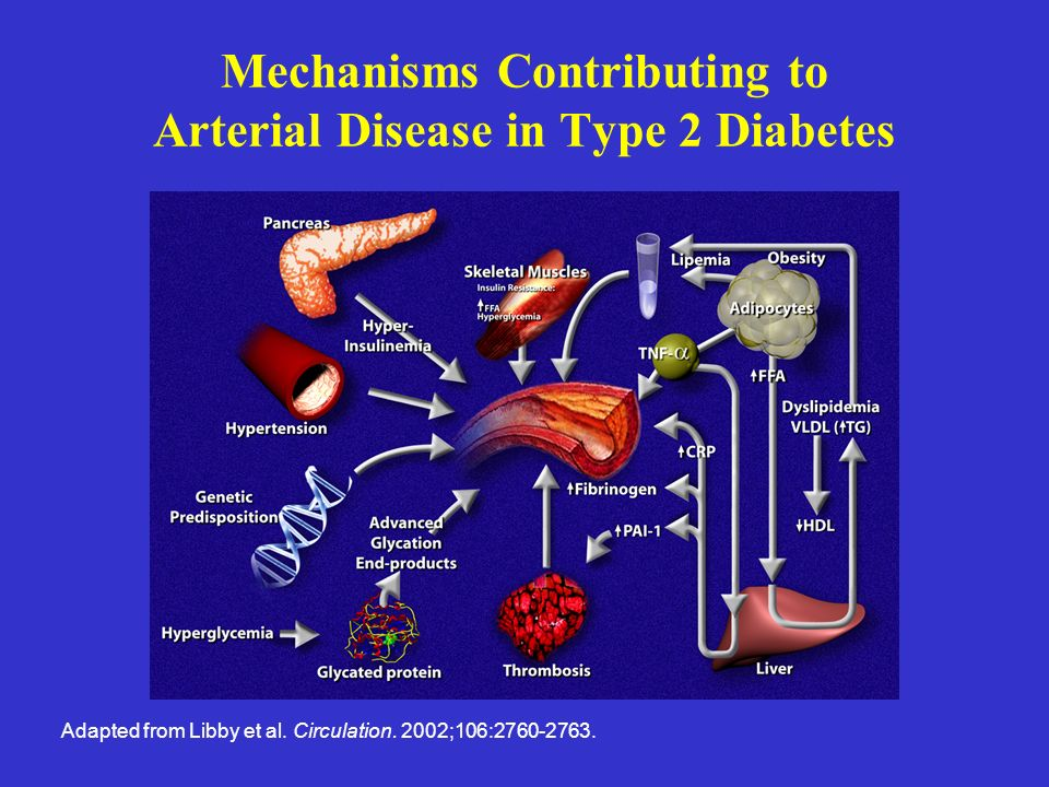 Mechanisms Contributing to Arterial Disease in Type 2 Diabetes Adapted from Libby et al. Circulation. 2002;106:2760-2763.