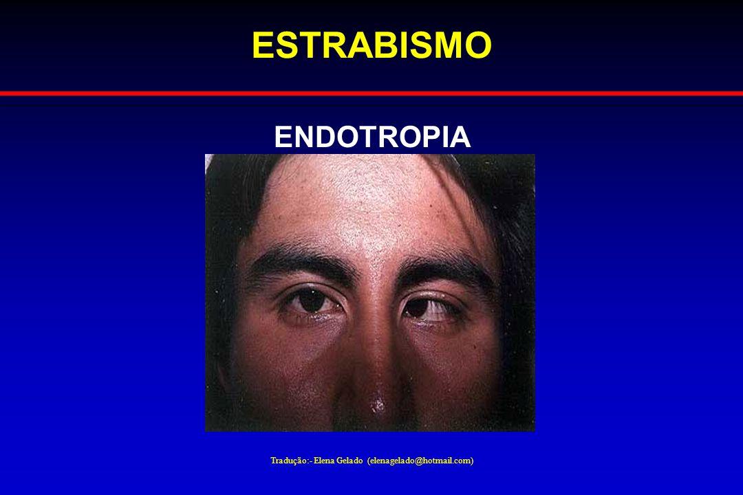 Tradução:- Elena Gelado (elenagelado@hotmail.com) ESTRABISMO ENDOTROPIA