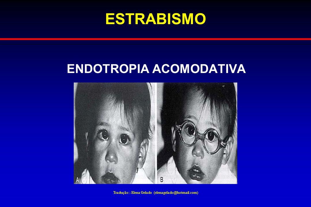 Tradução:- Elena Gelado (elenagelado@hotmail.com) ESTRABISMO ENDOTROPIA ACOMODATIVA