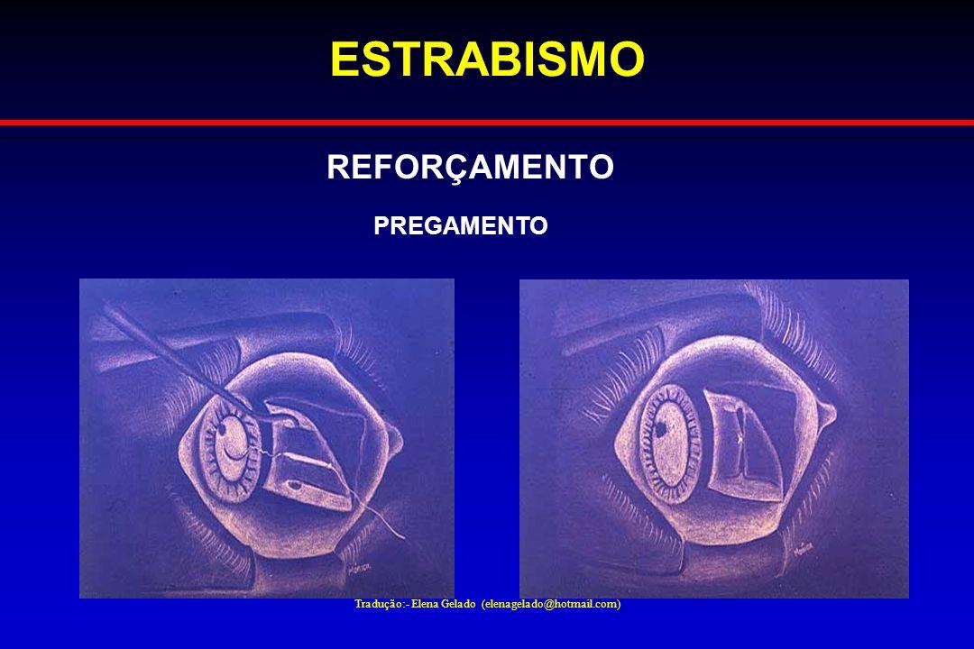 Tradução:- Elena Gelado (elenagelado@hotmail.com) ESTRABISMO REFORÇAMENTO PREGAMENTO