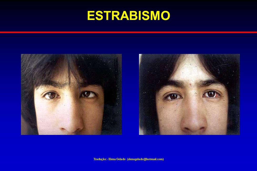 Tradução:- Elena Gelado (elenagelado@hotmail.com) ESTRABISMO