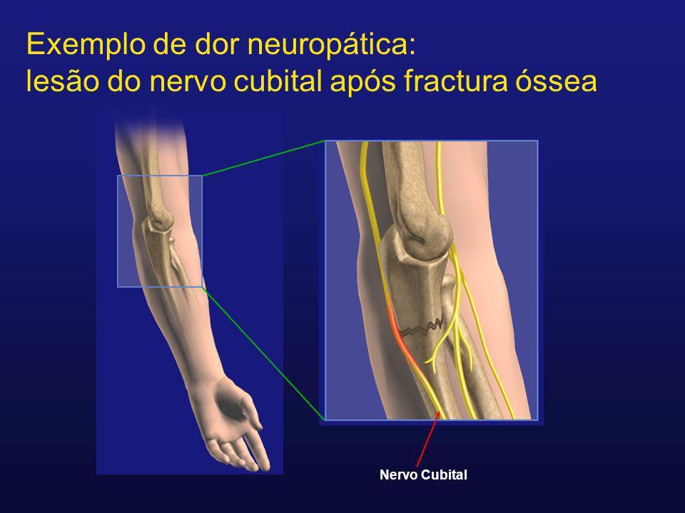 Exemplo de dor neuropática: lesão do nervo cubital após fractura óssea Nervo Cubital