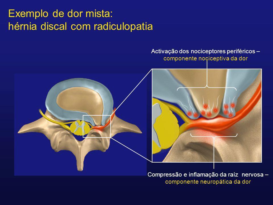 Activação dos nociceptores periféricos – componente nociceptiva da dor Compressão e inflamação da raíz nervosa – componente neuropática da dor Exemplo