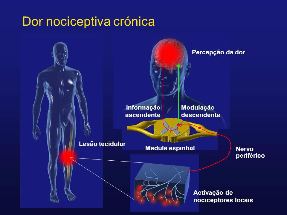 Dor Neuropática Dor iniciada ou causada por disfunção ou lesão primária do sistema nervoso central ou periférico (incluindo o sistema nervoso autónomo) International Association for the Study of Pain.