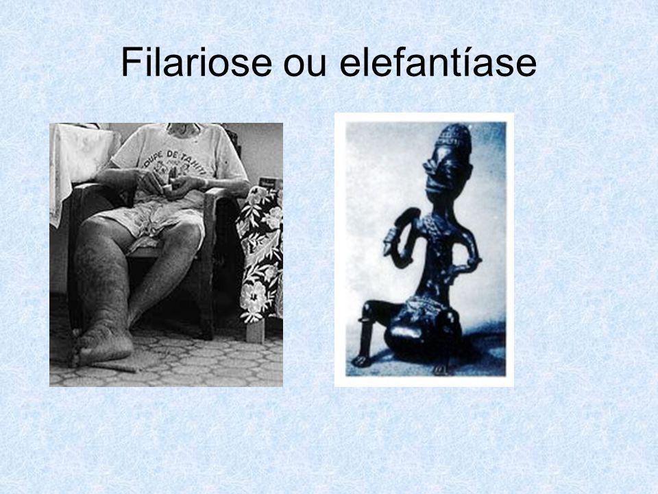 Filariose ou elefantíase