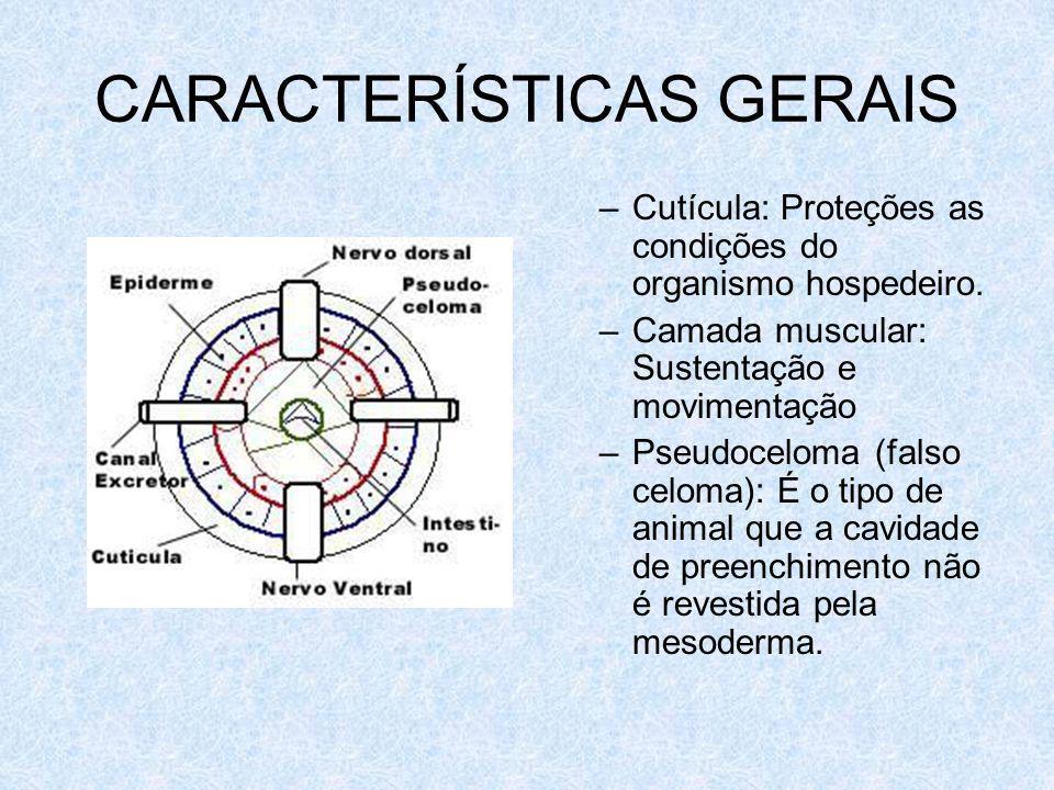 CARACTERÍSTICAS GERAIS –Cutícula: Proteções as condições do organismo hospedeiro. –Camada muscular: Sustentação e movimentação –Pseudoceloma (falso ce