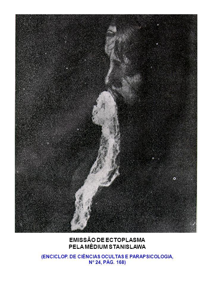 EMISSÃO DE ECTOPLASMA PELA MÉDIUM STANISLAWA (ENCICLOP. DE CIÊNCIAS OCULTAS E PARAPSICOLOGIA, Nº 24, PÁG. 168)