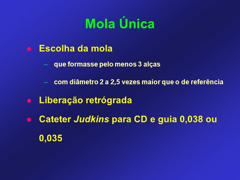 Mola Única Escolha da mola –que formasse pelo menos 3 alças –com diâmetro 2 a 2,5 vezes maior que o de referência Liberação retrógrada Cateter Judkins para CD e guia 0,038 ou 0,035