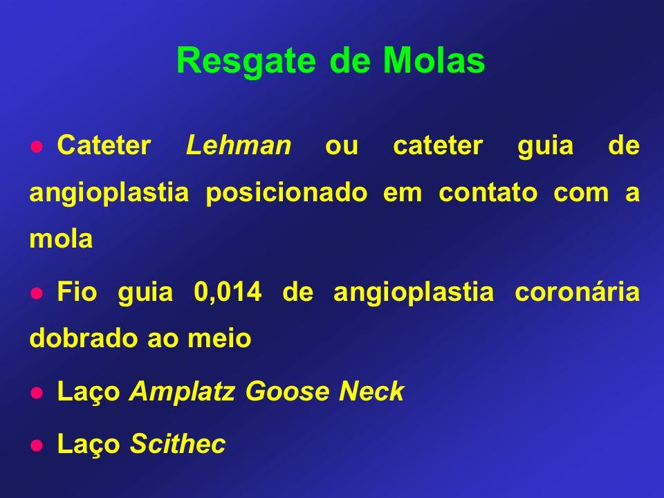 Cateter Lehman ou cateter guia de angioplastia posicionado em contato com a mola Fio guia 0,014 de angioplastia coronária dobrado ao meio Laço Amplatz Goose Neck Laço Scithec Resgate de Molas