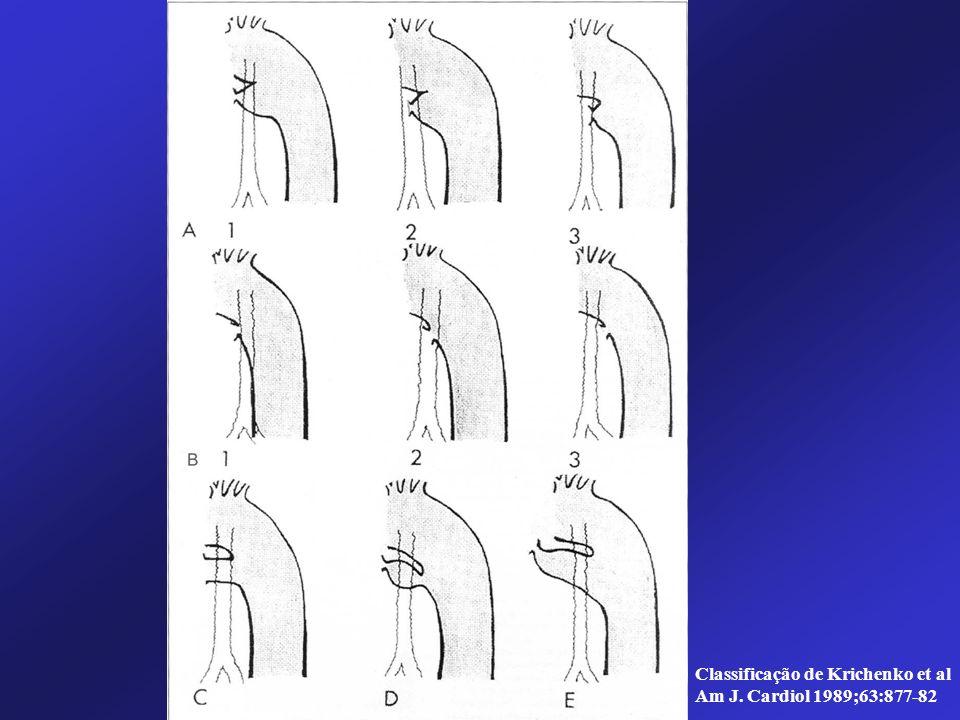 Classificação de Krichenko et al Am J. Cardiol 1989;63:877-82