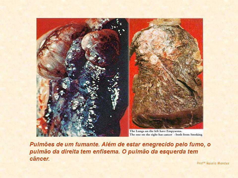Pulmões de um fumante. Além de estar enegrecido pelo fumo, o pulmão da direita tem enfisema. O pulmão da esquerda tem câncer. Profª Reisila Mendes