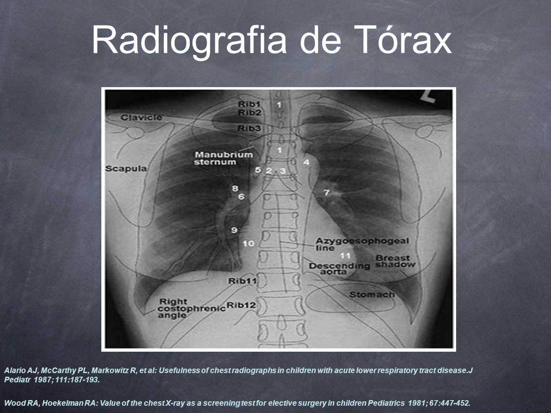 Radiografia de Tórax Alario AJ, McCarthy PL, Markowitz R, et al: Usefulness of chest radiographs in children with acute lower respiratory tract disease.J Pediatr 1987; 111:187-193.