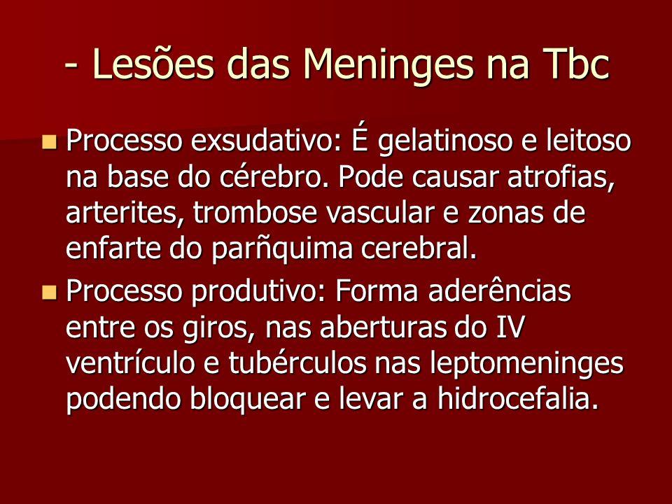 - Lesões das Meninges na Tbc Processo exsudativo: É gelatinoso e leitoso na base do cérebro. Pode causar atrofias, arterites, trombose vascular e zona