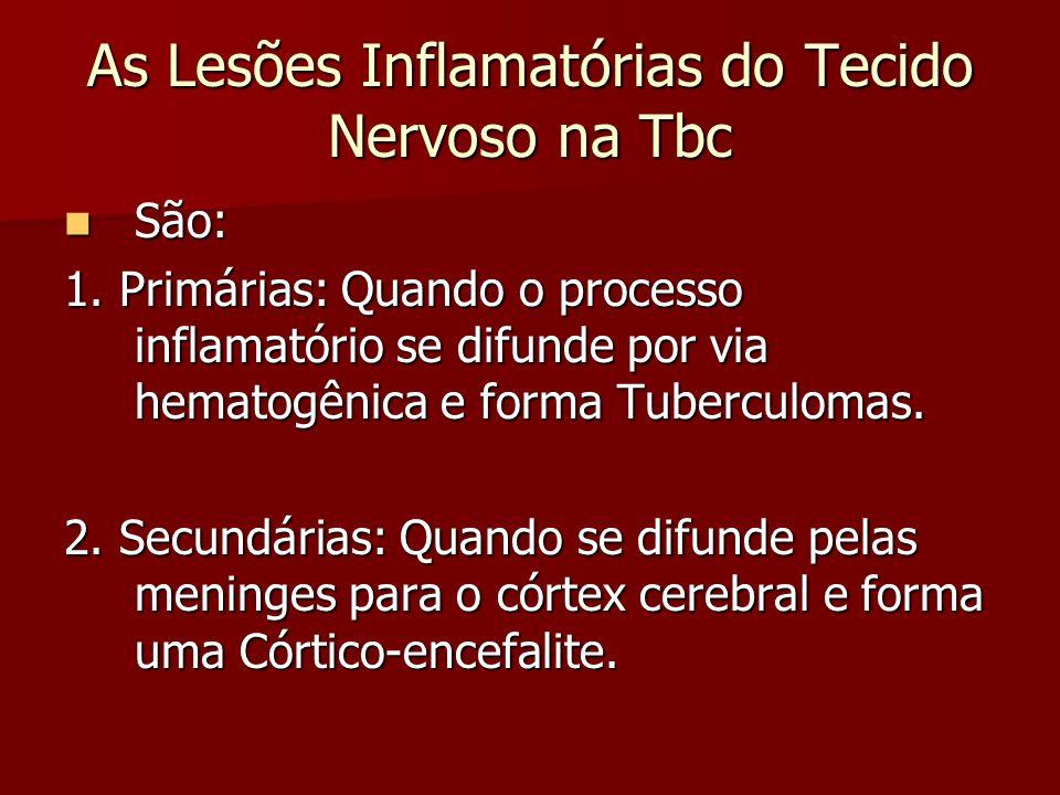 As Lesões Inflamatórias do Tecido Nervoso na Tbc São: São: 1. Primárias: Quando o processo inflamatório se difunde por via hematogênica e forma Tuberc