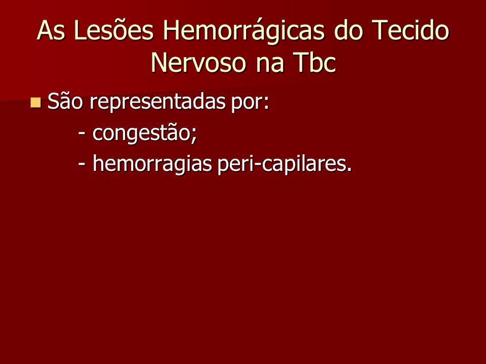 As Lesões Hemorrágicas do Tecido Nervoso na Tbc São representadas por: São representadas por: - congestão; - hemorragias peri-capilares.