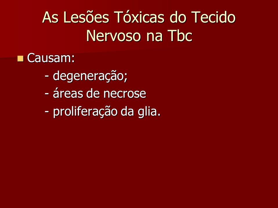 As Lesões Tóxicas do Tecido Nervoso na Tbc Causam: Causam: - degeneração; - áreas de necrose - proliferação da glia.