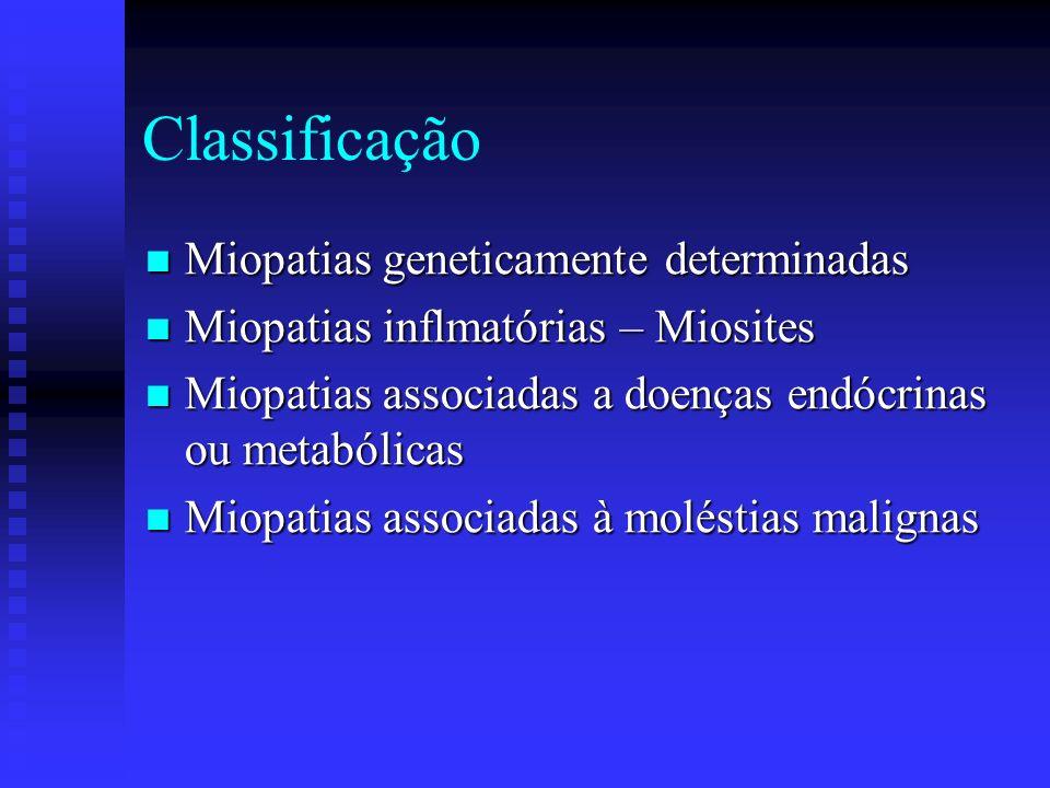 Conceito Doença muscular Doença muscular