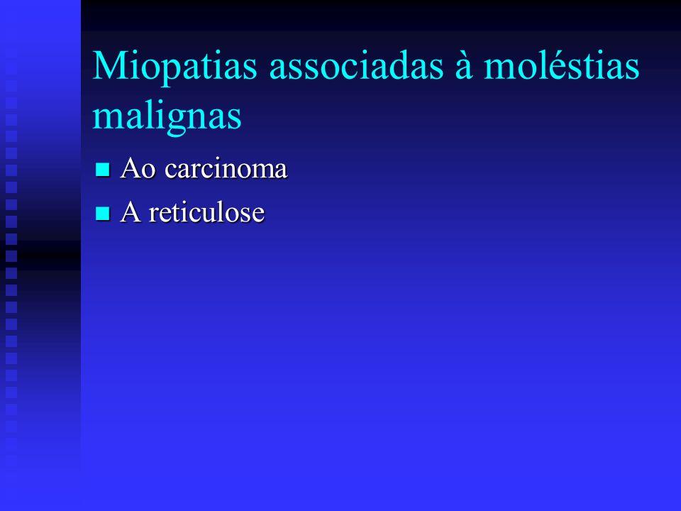 Miopatias associadas a doenças endócrinas ou metabólicas Da Tixeotoxicose Da Tixeotoxicose Da hipotireotoxicose Da hipotireotoxicose Da síndrome de Cu