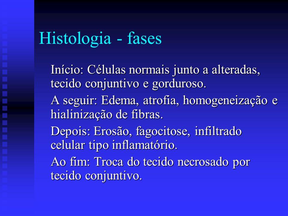 Distrofia Muscular Progressiva Patogênese – Teorias Patogênese – Teorias Vascular: Microenfartes ou alteração do metabolismo das catecolaminas. Genéti