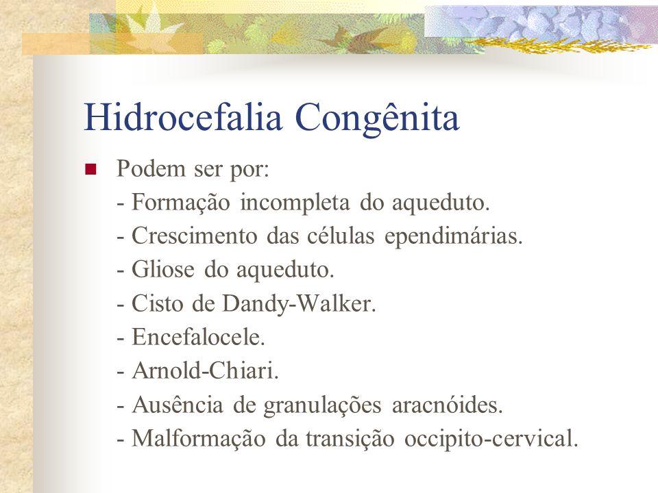 Trissomia do 13 Tem: Anomalias no prosencéfalo, falta de separação entre os hemisférios por desenvolvimento incompletos dos mesmos, dos nervos olfatór