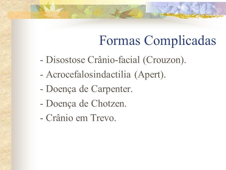 Formas Simples - Escafocefalia - Plagiocefalia - Braquicefalia - Trigonocefalia - Oxicefalia - De todas as suturas