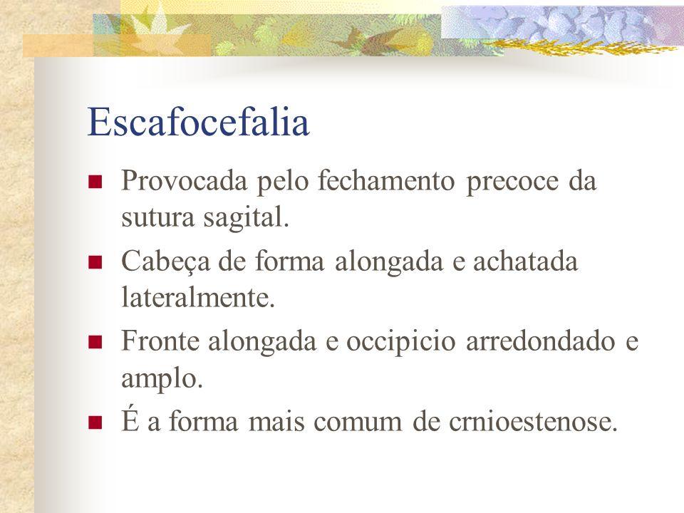 Formas Complicadas - Disostose Crânio-facial (Crouzon). - Acrocefalosindactilia (Apert). - Doença de Carpenter. - Doença de Chotzen. - Crânio em Trevo