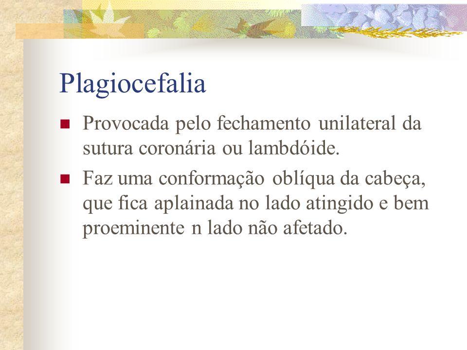 Escafocefalia Provocada pelo fechamento precoce da sutura sagital. Cabeça de forma alongada e achatada lateralmente. Fronte alongada e occipicio arred