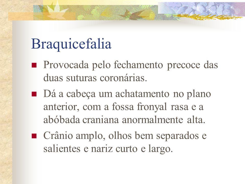 Plagiocefalia Provocada pelo fechamento unilateral da sutura coronária ou lambdóide. Faz uma conformação oblíqua da cabeça, que fica aplainada no lado