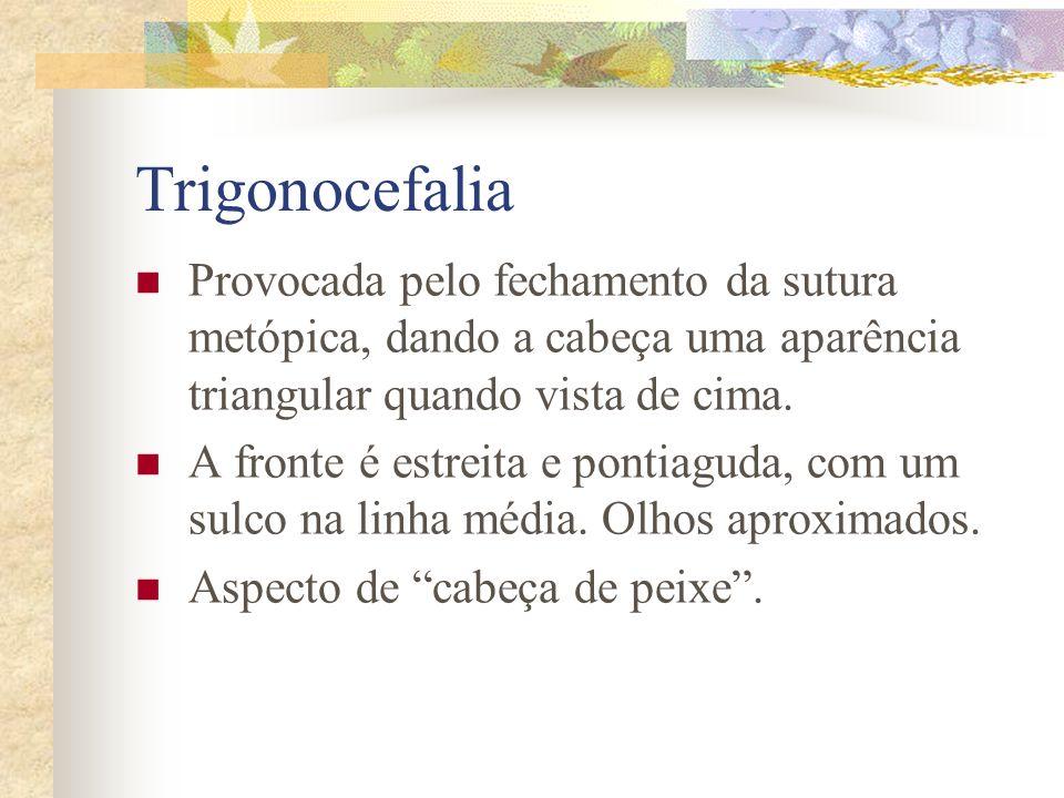 Braquicefalia Provocada pelo fechamento precoce das duas suturas coronárias. Dá a cabeça um achatamento no plano anterior, com a fossa fronyal rasa e