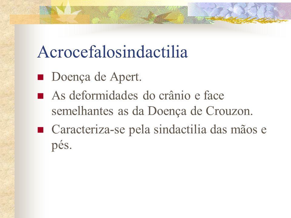 Disostose Crânio-facial Doença de Crouzon. Crânio do tipo oxicefálico, hipoplasia maxilar, encurtamento do lábio superior prognatismo e forma do nariz