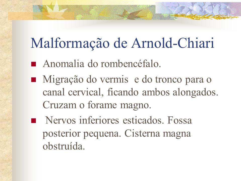 Crânio em Trevo Forma do crânio com essa característica.