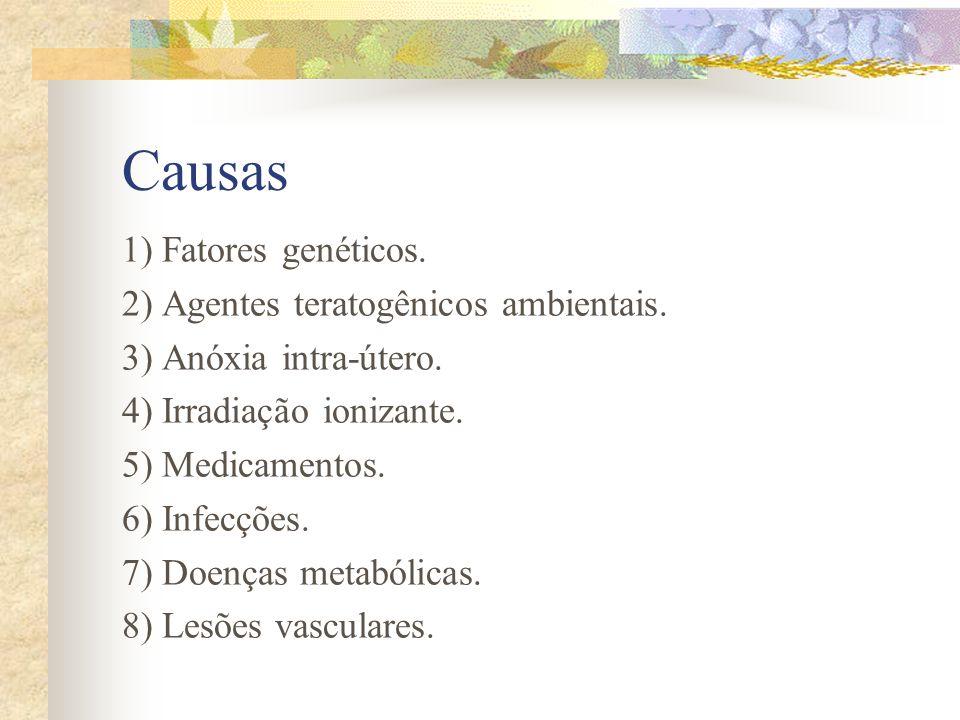 Fisiopatogenia Os defeitos do desenvolvimento podem manifestar-se por: - Ausência dos hemisférios cerebrais. - Ausência de partes do SNC. - Macrogiria