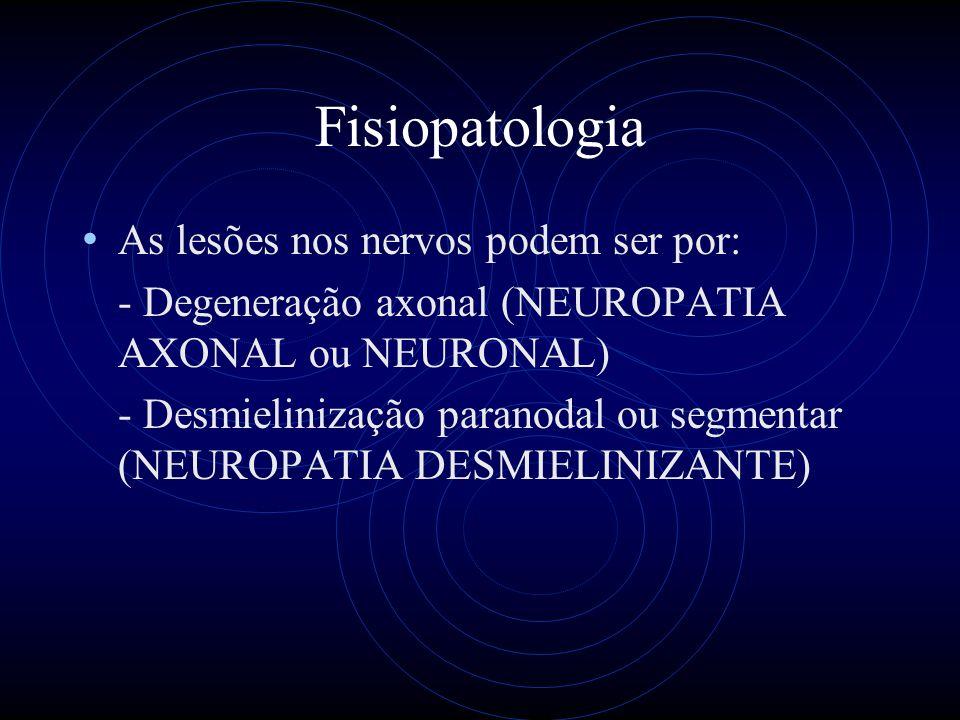 Fisiopatologia As lesões nos nervos podem ser por: - Degeneração axonal (NEUROPATIA AXONAL ou NEURONAL) - Desmielinização paranodal ou segmentar (NEUROPATIA DESMIELINIZANTE)