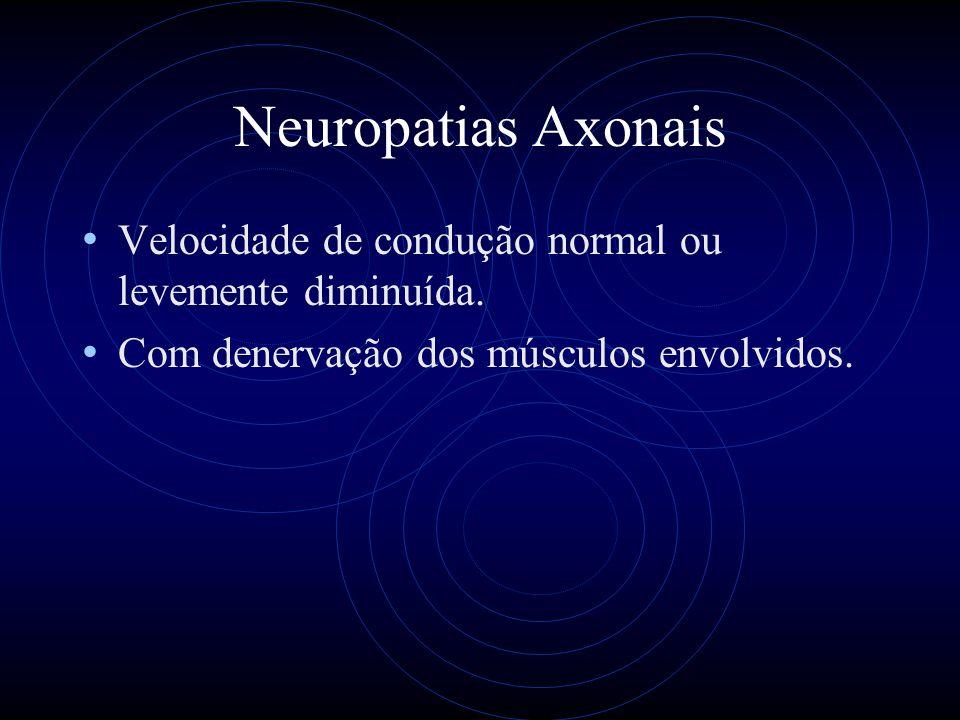 Lesão Do Plexo Lombo-sacro Ocorre no diabete, câncer, hemorragias e traumatismos ou de forma idiopática.