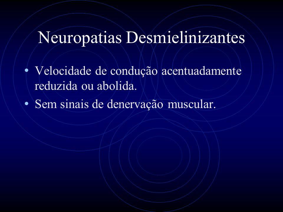 Neuropatias Desmielinizantes Velocidade de condução acentuadamente reduzida ou abolida.