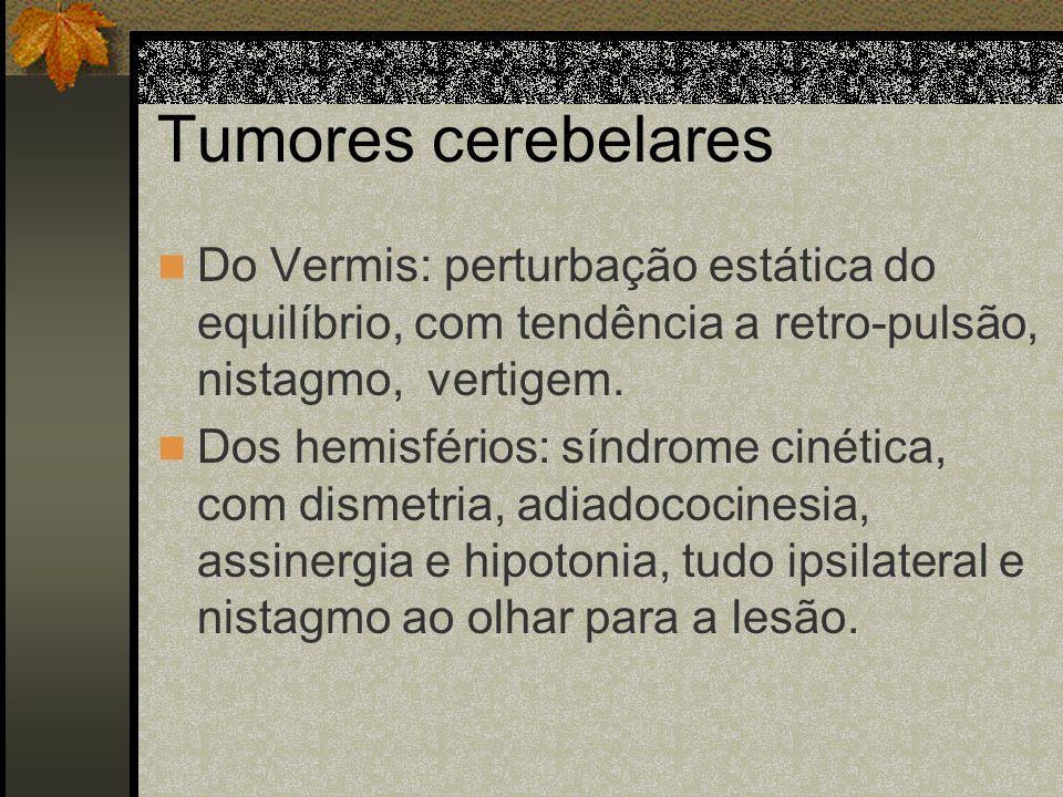 Tumores do Tronco Cerebral Mostram síndromes alternas, isto é, lesões dos pares cranianos do lado do tumor e hemiplegia contra-lateral. - III e IV par