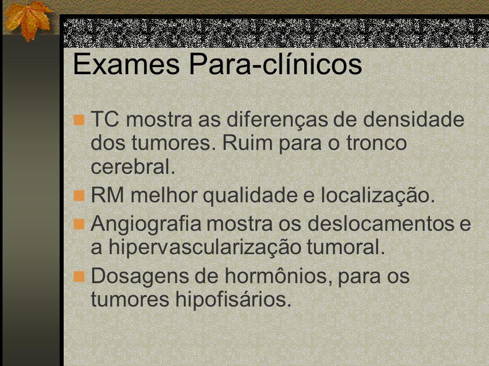 Sinais De Falsa Localização Paralisia do III par. Paralisia do VI par. Babinski bilateral. Babinski ipsilateral ao tumor (por compressão do pedúnculo