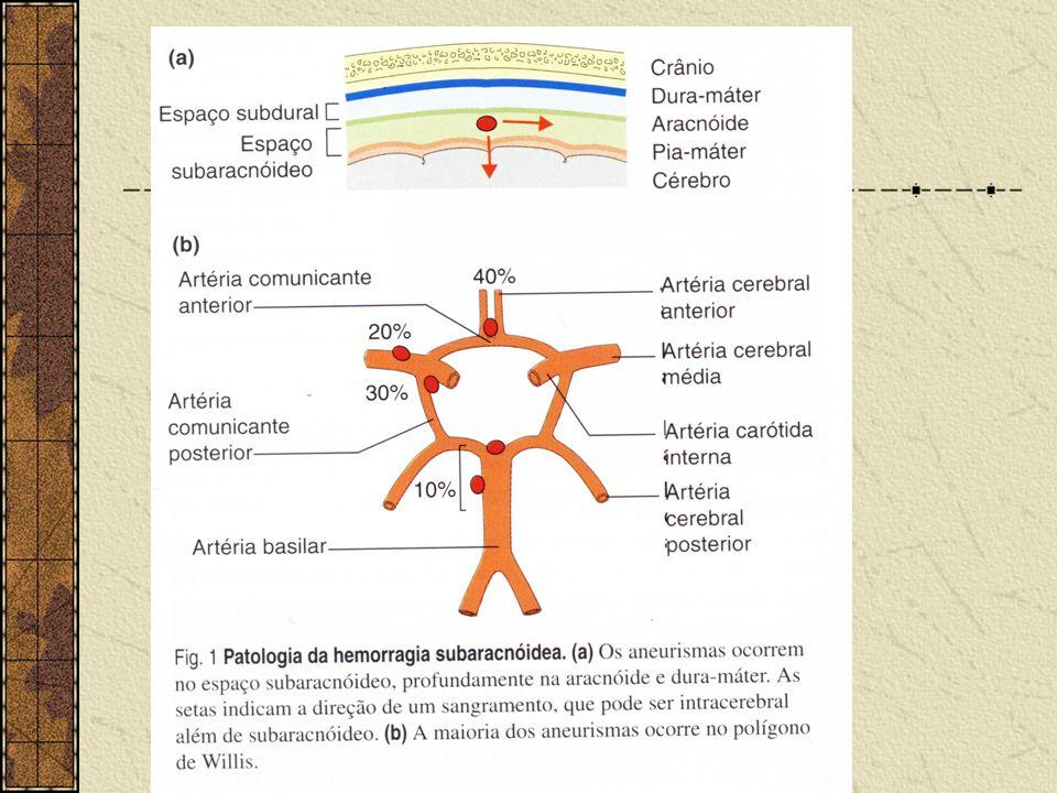 Hemorragia Sub-aracnoidea O sangue mistura-se ao líquor e não forma hematoma. 51% por aneurismas, 8% por mal- formações artério-venosas. 70% dos casos
