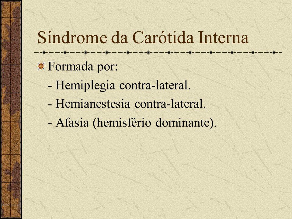 Sinais Positivos do AVC Síndromes arteriais: - Art. Carótida Interna. - Art. Cerebral Média. - Art. Cerebral Anterior. - Art. Cerebral Posterior. - Ar