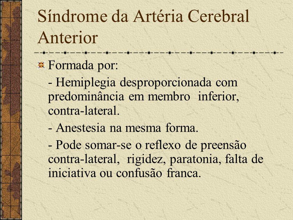 Síndrome da Carótida Interna Formada por: - Hemiplegia contra-lateral. - Hemianestesia contra-lateral. - Afasia (hemisfério dominante).