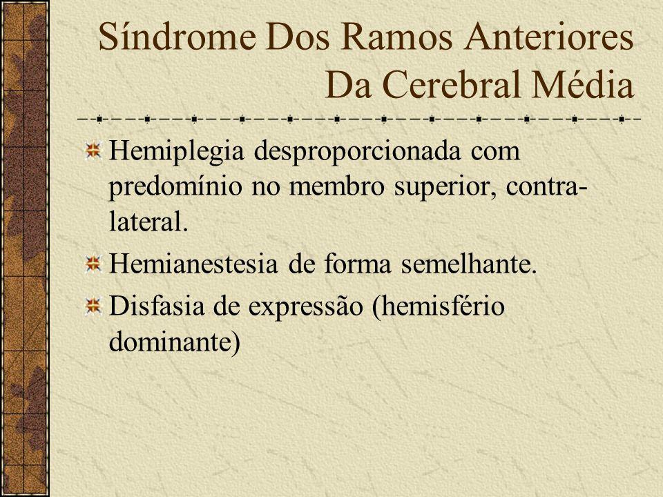 Síndrome do Tronco Da Artéria Cerebral Média Causa: - Manifestações clínicas semelhantes às da artéria carótida interna.
