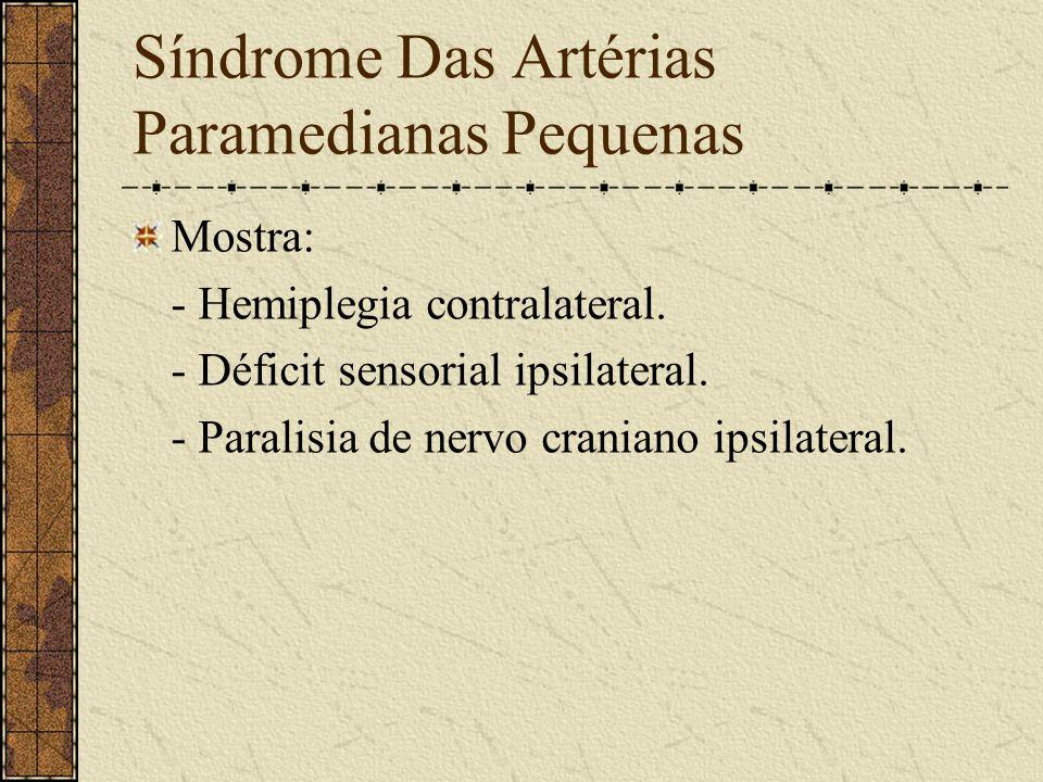 Síndrome do início da Artéria vertebral Mostra: - Silêncio clínico. Circulação mantida pela outra vertebral.